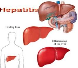 Cara Mengobati Hepatitis